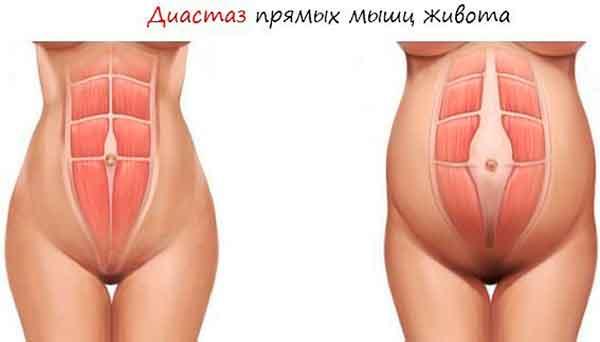 Что такое диастаз живота у женщин