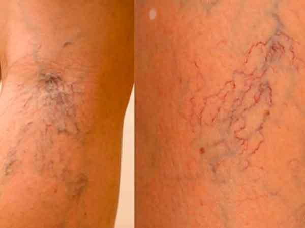 Народное лечение варикоза вен на ногах